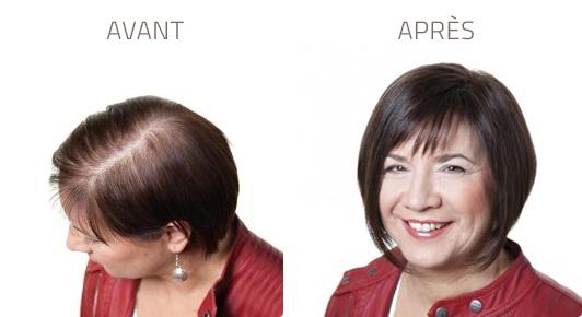 Face à la perte de cheveux des solutions existent : volumateur, commande spéciale et le sur-mesure