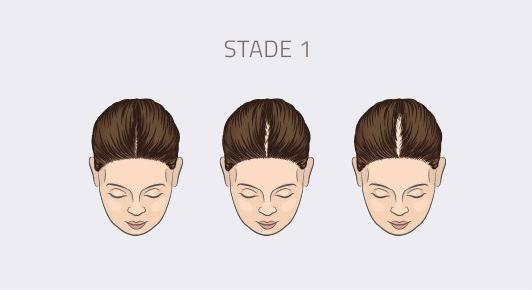 stade 1 alopécie féminine