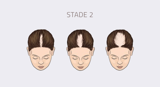 stade 2 alopécie féminine
