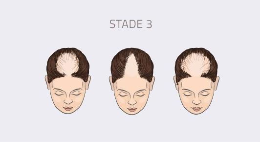 stade 3 alopécie féminine