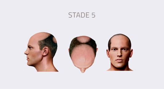 stade 5 calvitie homme