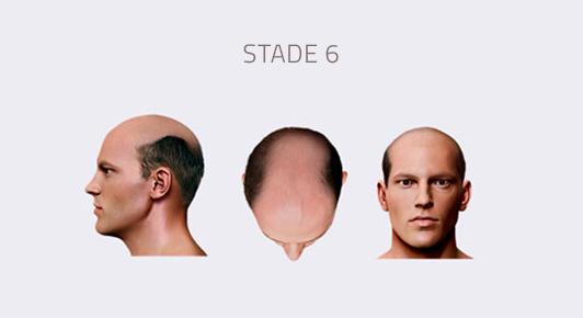 stade 6 calvitie homme